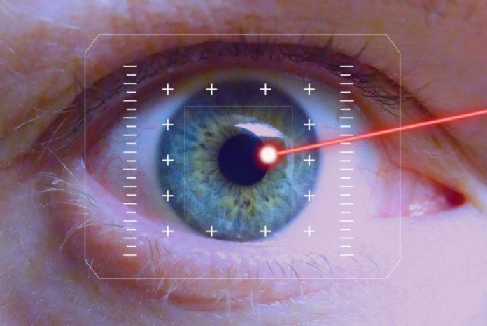 operatie-laser-la-ochi-1
